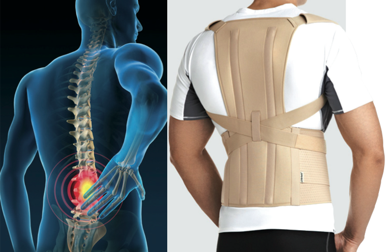 Per sostenere e stabilizzare il carico della colonna vertebrale costruiamo  su misura busti e corsetti